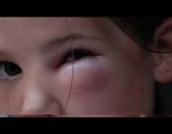 afbeelding muggenbult
